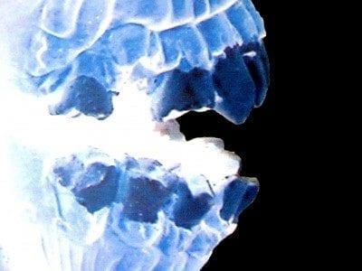 Heavy Duty Herbal Dental Rinse for Dry Socket